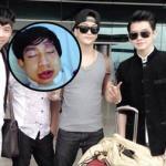 Thành viên nhóm HKT gặp tai nạn nghiêm trọng trước chuyến lưu diễn