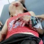 Lựu đạn đồ chơi bất ngờ phát nổ, 2 trẻ nhập viện cấp cứu