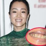 Củng Lợi mất điểm hoàn toàn với hàm răng xỉn màu