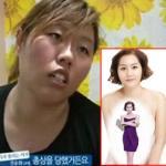 Thêm 1 ca thẩm mỹ khiến cả nước Hàn choáng váng