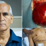 Phát hiện khối u thận to bằng quả dưa hấu