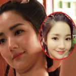 'Kiều nữ' Park Min Young lộ hai cằm kém xinh