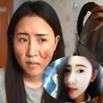 Hot girl Trung Quốc biến dạng mặt vì bị bỏng nước sôi