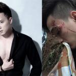 Cao Thái Sơn xót xa khi nhóm nhạc HKT gặp tai nạn kinh hoàng