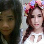 Những cô gái Thái Lan 'lột xác' đẹp như hot girl nhờ phẫu thuật thẩm mỹ