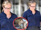 Kate Upton lộ trán đầy vết đỏ, thản nhiên ngồi nhổ ria mép