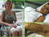 Nữ MC Brazil thủng chân vì độn vòng ba hồi phục đáng kinh ngạc