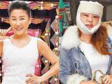 Ca sĩ Đài Loan U50 công khai ảnh phẫu thuật thẩm mỹ 'gây sốc'
