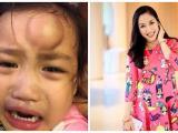 Trán sưng như 'quả ổi' của con gái Ốc Thanh Vân chỉ vì phút lơ đễnh của mẹ