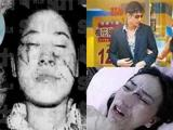 Hình ảnh bầm dập đến 'thân tàn ma dại' của loạt người đẹp châu Á bị bạo hành
