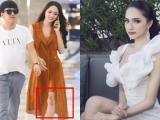 Hoa hậu Hương Giang lộ vết sẹo 'khổng lồ' khó hiểu ở chân khi đi quay cùng Trường Giang