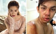 Tin sao Việt 23/3/2018: Hồ Ngọc Hà: 'Tôi không rảnh để thông báo là bà đã có nhẫn', Sơn Ngọc Minh từng bị tai nạn suýt chết