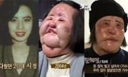 'Thảm hoạ dao kéo' Han Mi Ok chết trong cô độc ở tuổi 57
