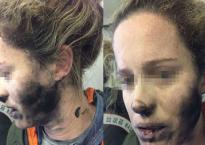 Cô gái bị cháy tóc, bỏng mặt vì sự cố tai nghe, bài học cảnh báo khi đi máy bay