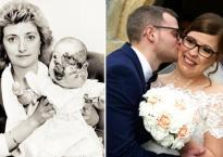 Sinh ra với gương mặt biến dạng và bị xa lánh, 25 năm sau phép màu đã thay đổi cuộc đời cô gái