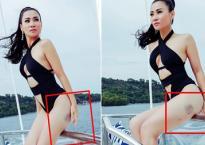 Thu Minh giải thích về vết bầm tím khó hiểu ở đùi khi diện áo tắm