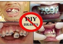 Rùng mình trước những tai nạn niềng răng đáng sợ trên thế giới