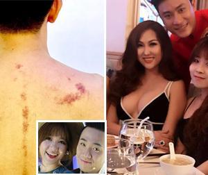 Tin sao Việt mới 27/2: Trấn Thành nhận kết quả đắng khi nhờ vợ cạo gió, Phi Thanh Vân khoe vòng một khủng