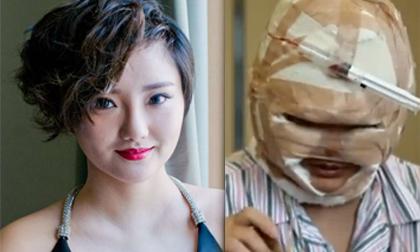 Nữ ca sỹ Trung Quốc lộ diện sau khi tung ảnh thẩm mỹ 2 tỷ như xác ướp