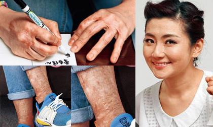 Fan xót xa khi thấy tay và chân biến dạng vì sẹo bỏng của Selina