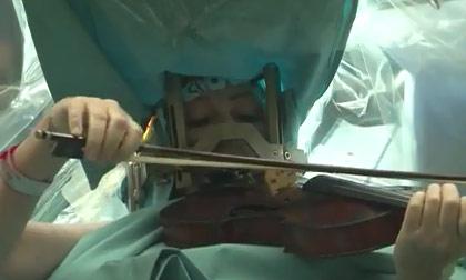 Choi violin trong lúc phẫu thuật