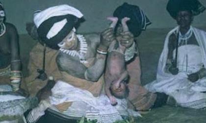 Tập tục hun khói trẻ sơ sinh để cầu may
