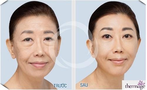 Solar Spa, Trẻ hóa da, Trẻ hóa da công nghệ cao, Thẩm mỹ viện Trẻ hóa da
