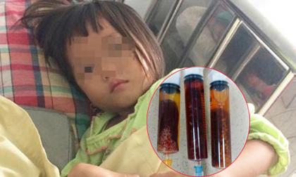 Ăn thịt bò tái, bé gái 4 tuổi bị nhiễm sán lá gan