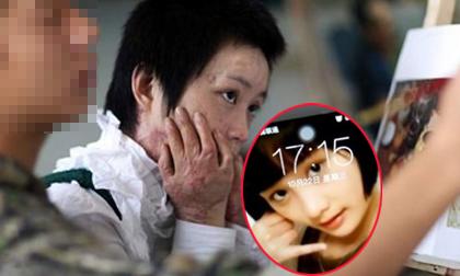 Chùm ảnh: Tuổi thanh xuân bị thiêu đốt của cô gái trẻ