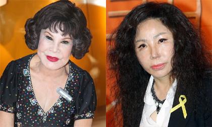 Những ca 'thẩm mỹ hỏng' gây chấn động showbiz châu Á 2014