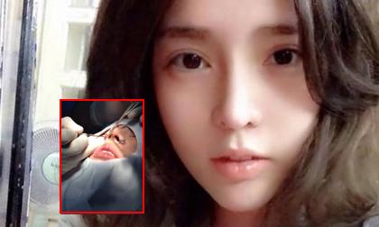 Vân Tokyo, hot girl dao kéo, phẫu thuật thẩm mỹ