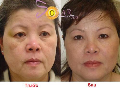 Solar Spa, Căng da mặt không phẫu thuật, Căng da trẻ hóa, Trẻ hóa da