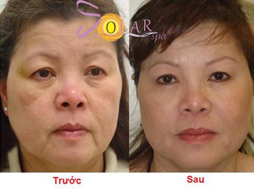 Solar Spa, Căng da mặt, Căng da mặt không phẫu thuật