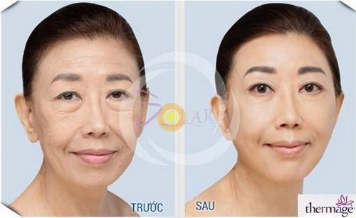 Solar Spa, Solar Spa khuyến mại, Căn da mặt, Căng da mặt không phẫu thuật