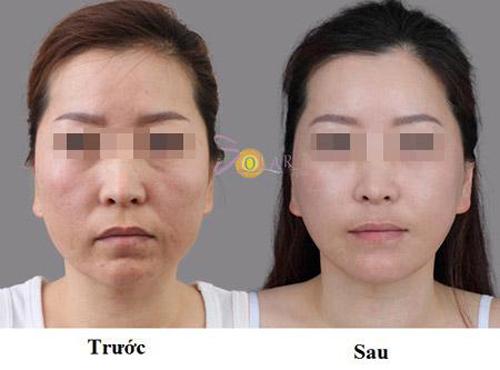 Trẻ hóa da, Da mặt trắng hồng, Chăm sóc da, Solar spa