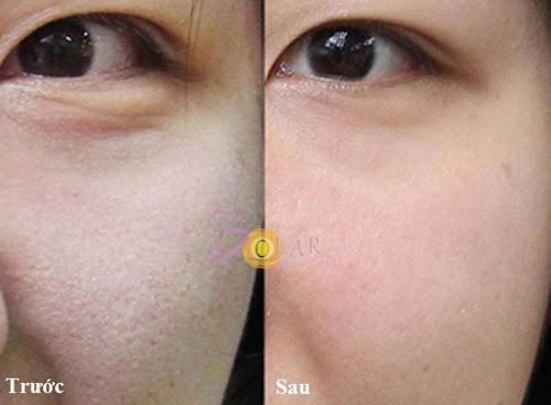Solar Spa, Solar Spa khuyến mại, Căng da, Trẻ hóa da
