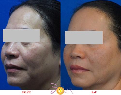 Solar Spa, Căng da mặt, Xóa nhăn, Căng da mặt không phẫu thuật