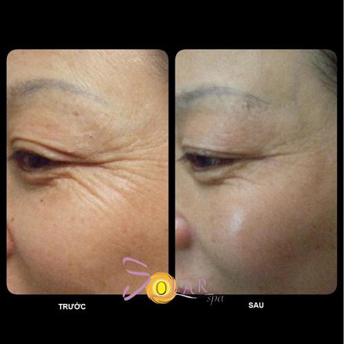 Căng da mặt, Trẻ hóa da, Solar Spa