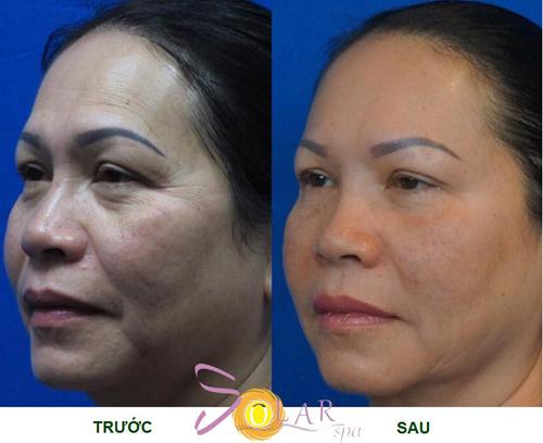 Trẻ hóa da mặt, Trẻ hóa da mặt không phẫu thuật, Solar spa