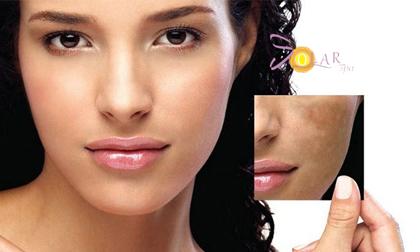 Solar spa, Trẻ hóa da, Trẻ hóa da không phẫu thuật