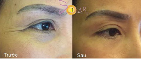 Solar Spa, Đánh tan bọng mỡ mắt, Solar Spa khuyến mại
