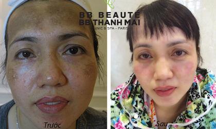BB Thanh Mai, Trẻ hóa da, Căng da, Trẻ hóa toàn diện