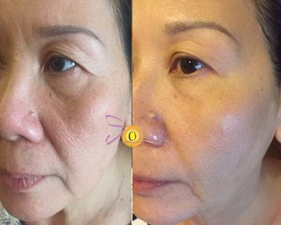 Trẻ hóa da, Solar spa, Công nghệ trẻ hóa da, Trẻ hóa da không phẫu thuật