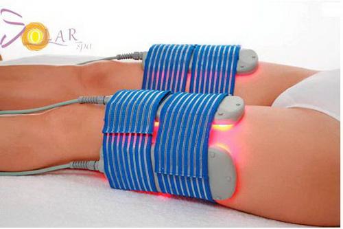 Solar spa, Giảm béo, Công nghệ giảm béo, Giảm béo bằng phương pháp Lipo Laser 3D