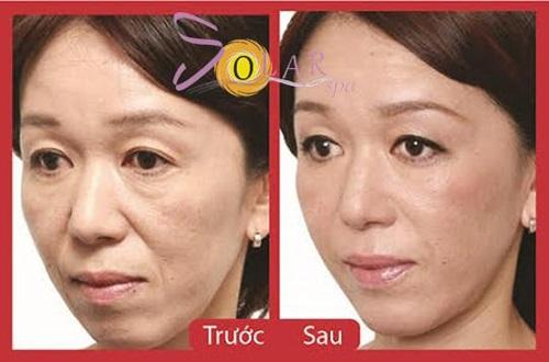 Solar Spa, Căng da mặt 1 lần duy nhất, Căng da mặt không phẫu thuật