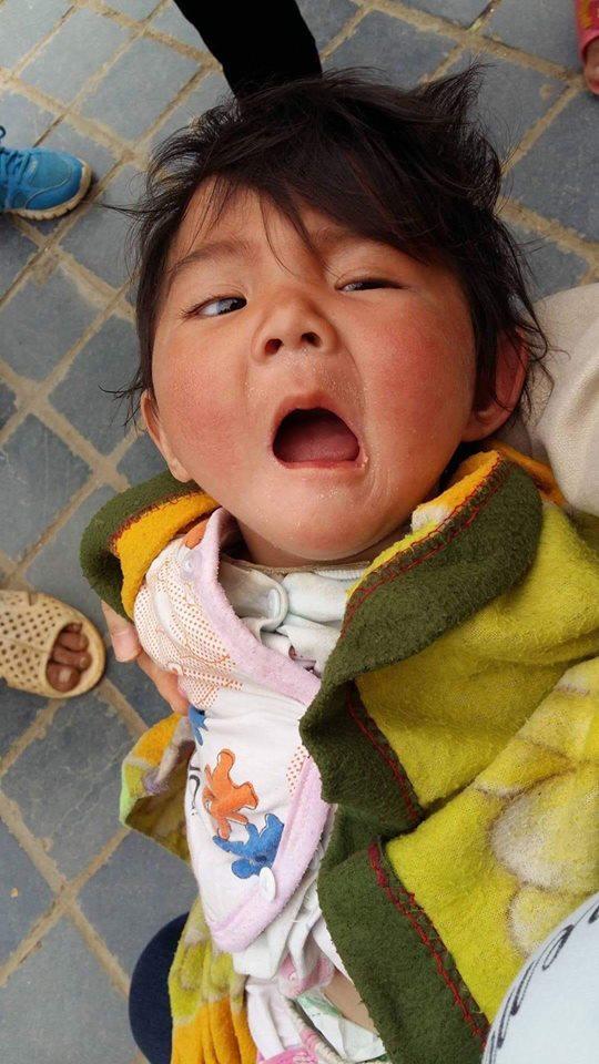 bé gái Lào Cai 14 tháng tuổi, Bé gái lào cai bị suy dinh dưỡng, Bé gái Yến Nhi, Thào Thị Yến Nhi