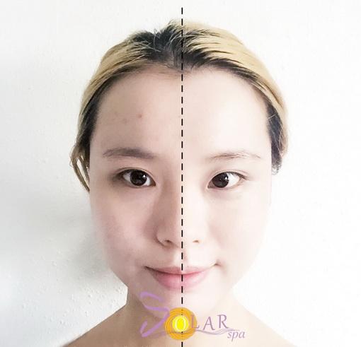 Vi Kim Tế Bào Gốc, Phun trắng da mặt, Solar spa