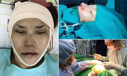 Nhìn loạt ảnh trong và sau quá trình 'dao kéo' mới thấy mỹ nhân Việt chịu đau giỏi như thế nào