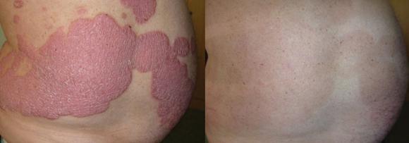 điều trị bệnh vảy nến, phòng khám chuyên khoa Dr. Michaels Psoriasis & Skin Clinic