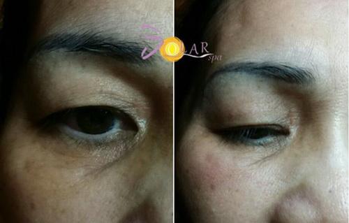 Căng da, Xóa bọng mỡ mắt, Solar spa